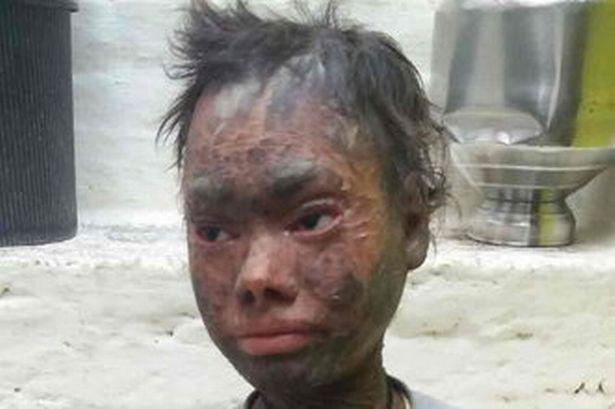 Shalini Yadav the grl who shed her skin every six weeks